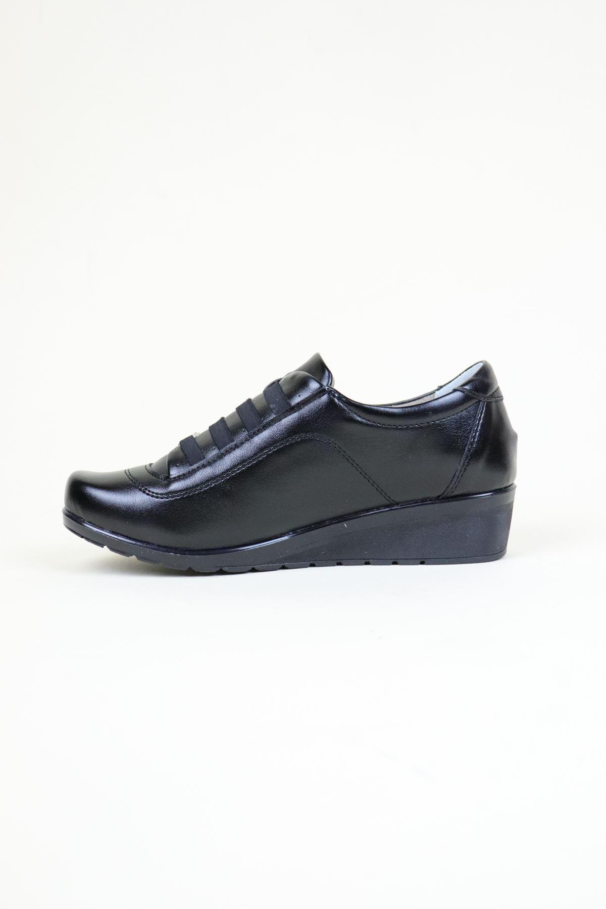 Edik 207 Ortopedik Siyah Kadın Ayakkabı