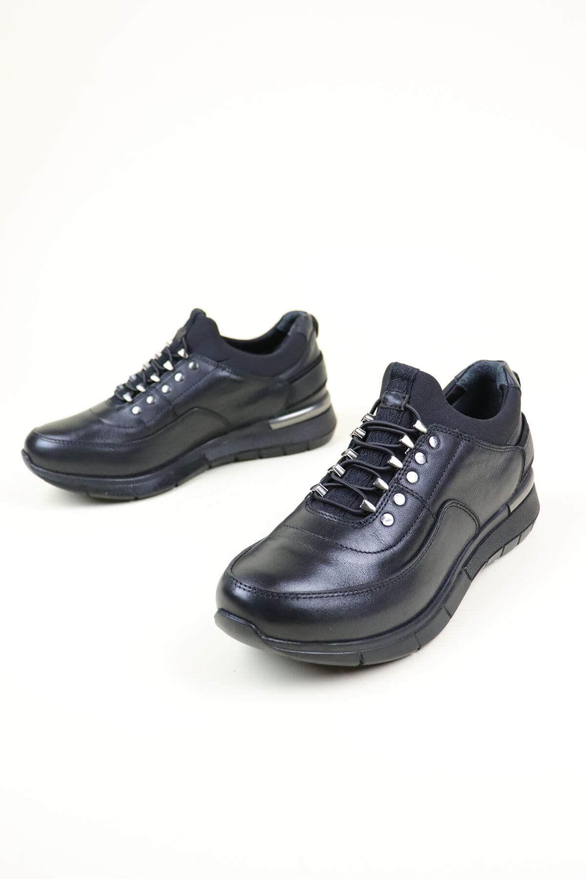 Forelli 24205 Siyah Kadın Ortopedik Ayakkabı