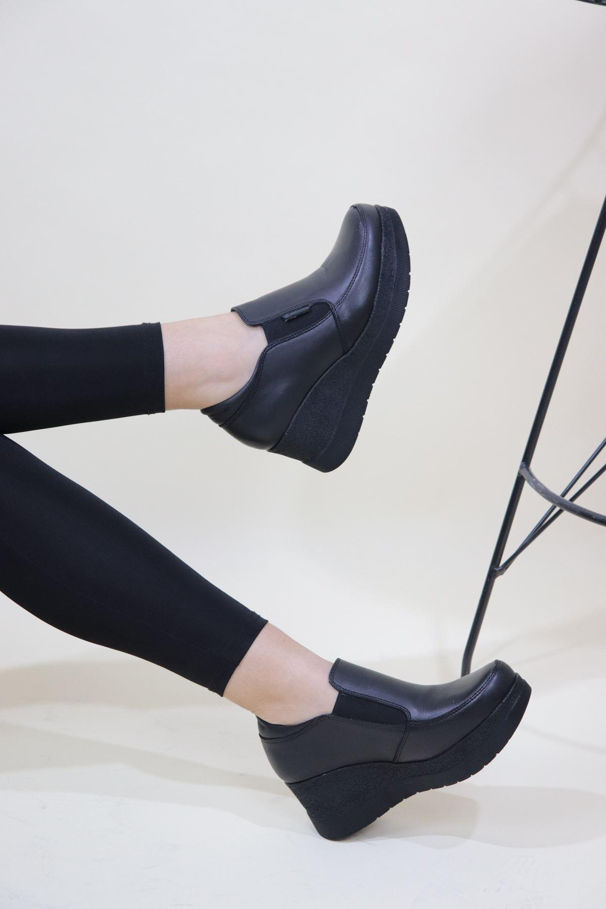 Mammamia - D20KA-755-Z Siyah Cilt Dolgu Kadın Ayakkabısı