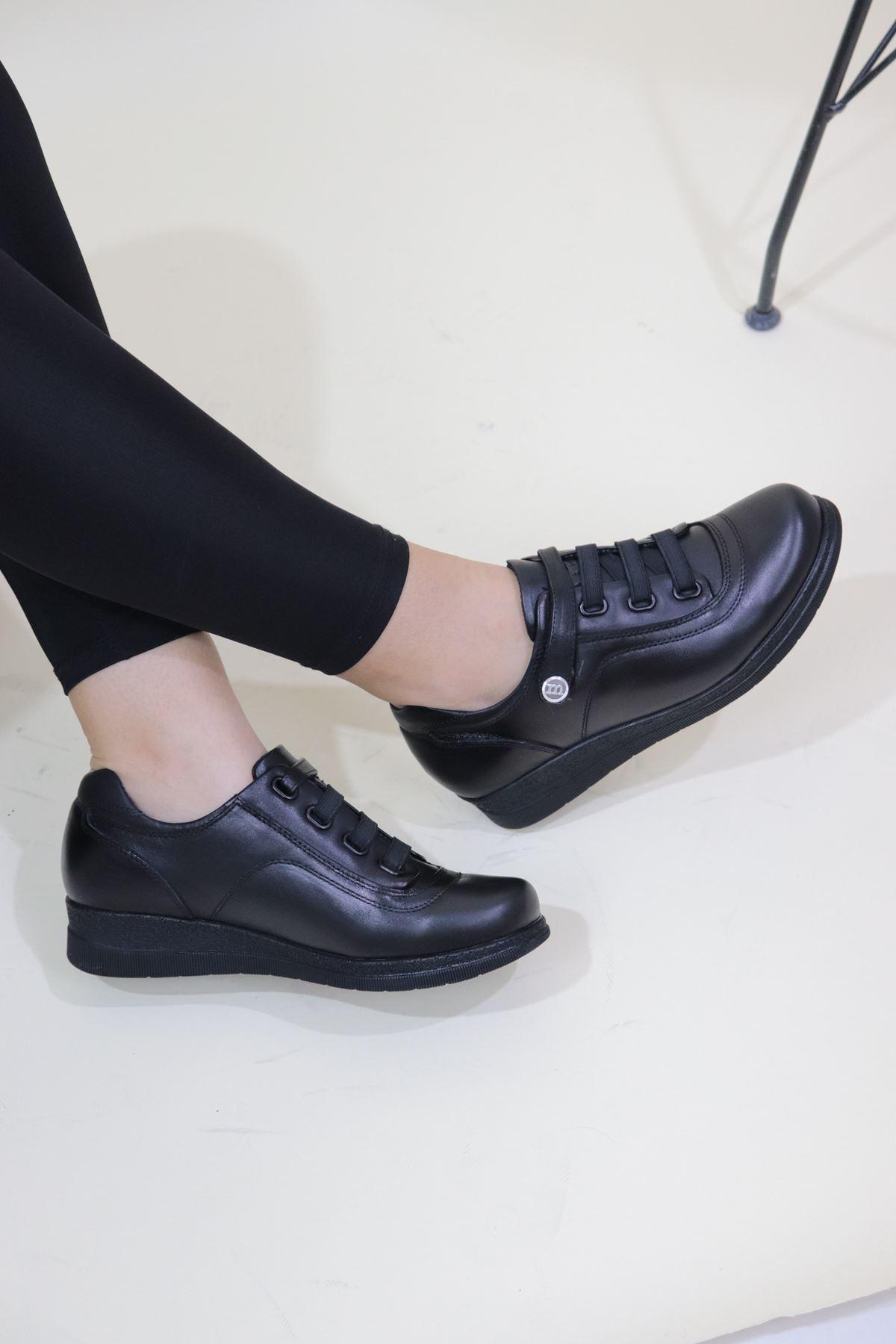 Mammamia - D20KA-675-B Siyah Çırtlı Kadın Ayakkabısı