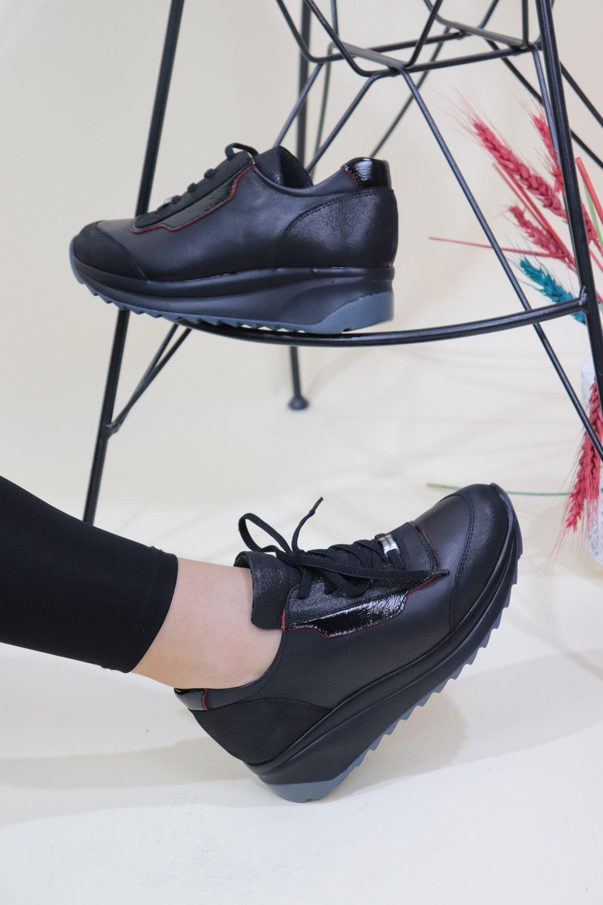 Mammamia - D20KA-395-B Siyah Kadın Dolgu Topuk